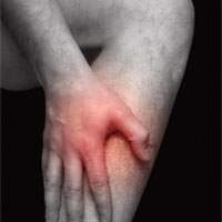 Wadenkrampf - Foto: obx-medizindirekt